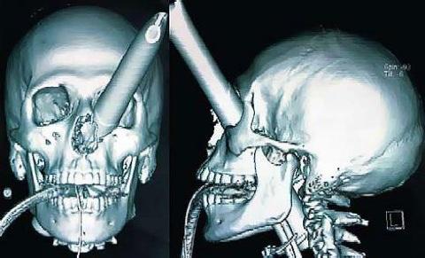 bb_chair-through-eye-x_ray.jpg